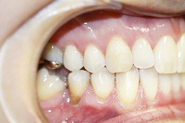 greffe de gencive, clinique dentaire ART de laval