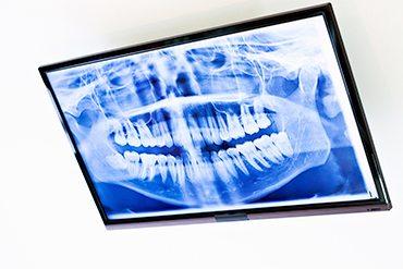 radiographie numerique, clinique dentaire ART de laval